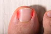 When Should My Child See a Doctor for Ingrown Toenails?
