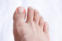 Avoid Developing an Ingrown Toenail