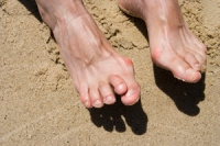 What Causes Hammertoe?