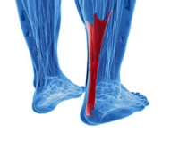 Possible Causes and Symptoms of an Achilles Tendon Injury